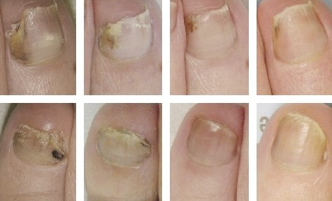 爪水虫 症状